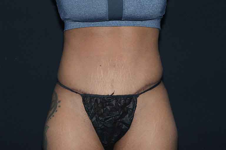 Abdominoplasty Before & After Image