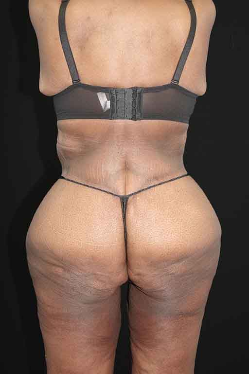 Butt Augmentation Before & After Image