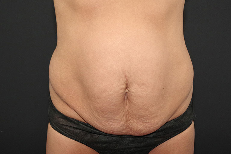 Hernia Repair Before & After Image