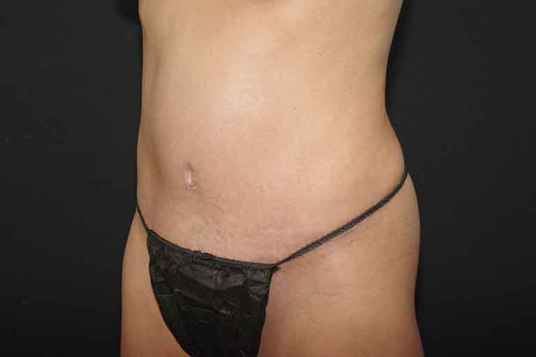 Liposuction Before & After Image