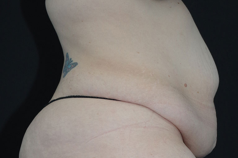 Panniculectomy Before & After Image