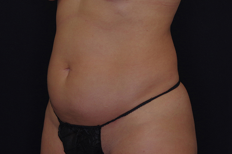 Smartlipo Before & After Image