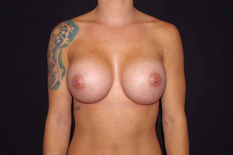 Breast Augmentation Rockford IL