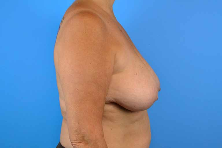 Coolsculpting female breast reduction