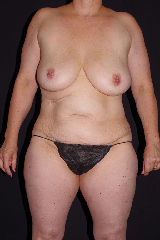 Breast Reduction Rockford IL