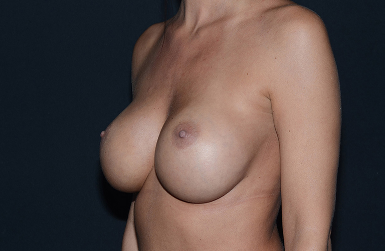 Breast Implant Exchange Before & After Image