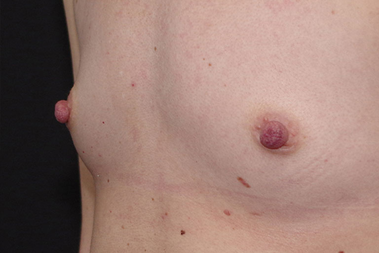 Nipple Reduction Before & After Image
