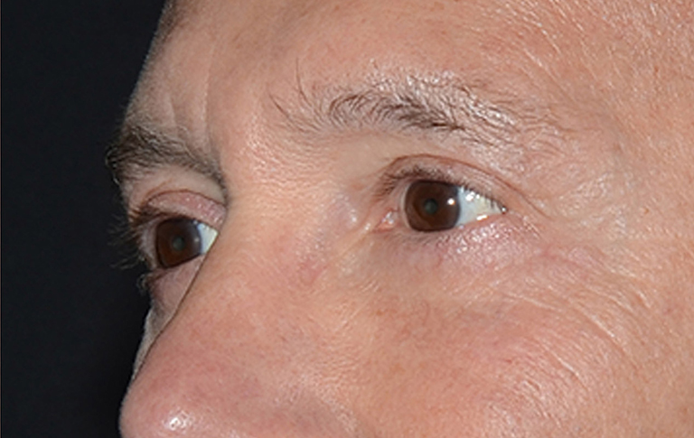 Eyelid Surgery Before & After Image