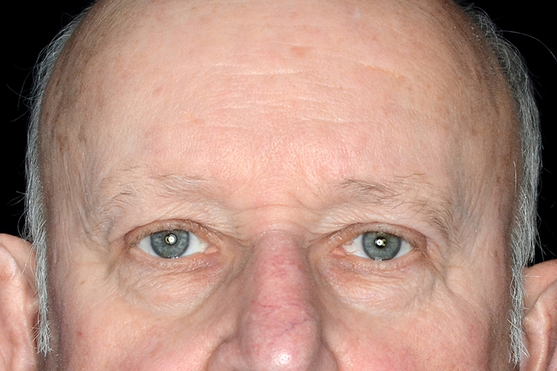 Eyelid Surgery Rockford IL