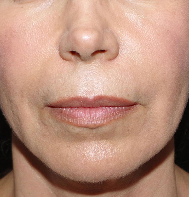 Lip Lift Before & After Image