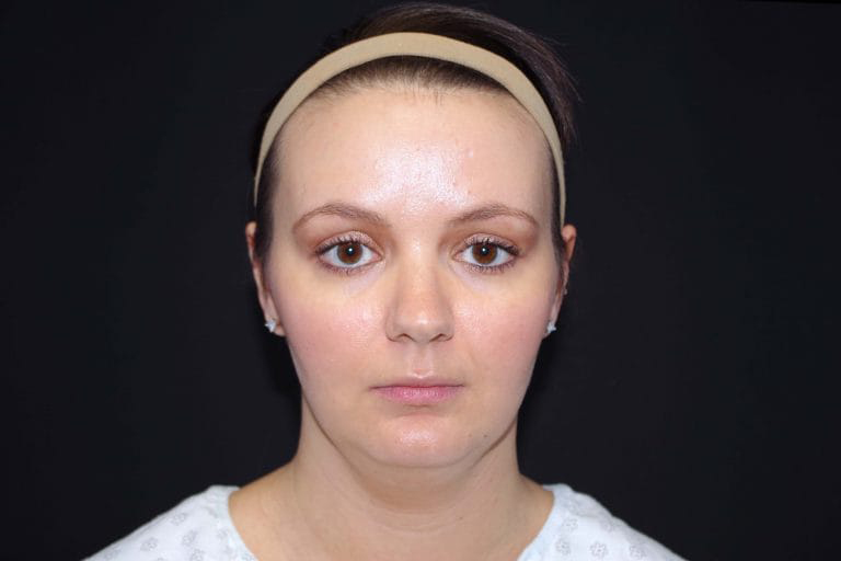 Liposuction Face Before & After Image