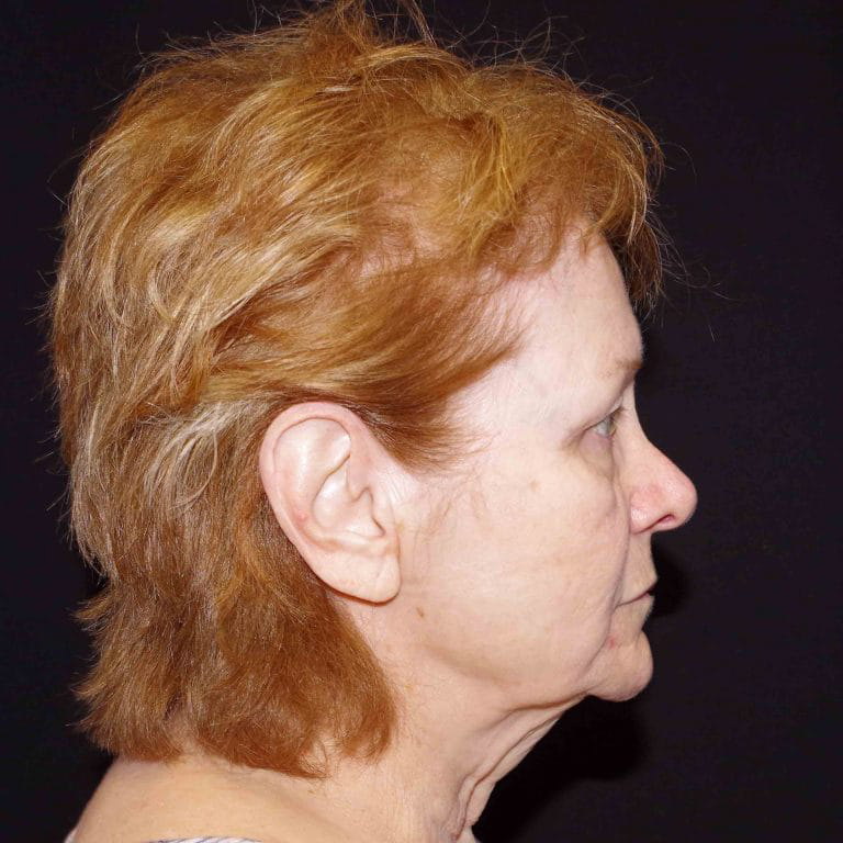 Mini Facelift Before & After Image
