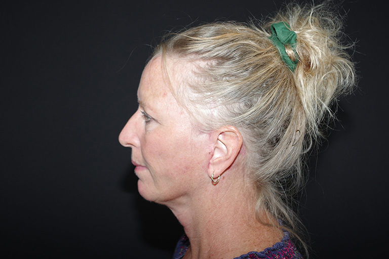Neck Lift Before & After Image