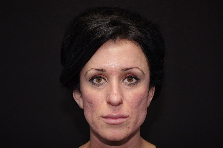 Septoplasty Before & After Image
